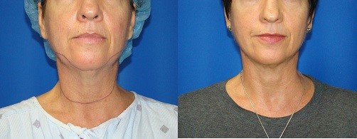 neck-lipo-houston