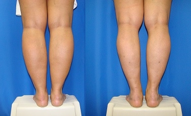 Smartlipo For Your Calves And Ankles Bergeron John