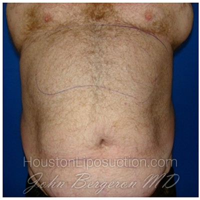 Liposuction Before & After Patient #359
