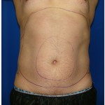 Liposuction Before & After Patient #399