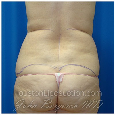 Liposuction Before & After Patient #429