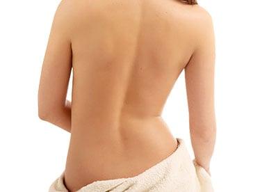 back liposuction smartlipo in houston tx