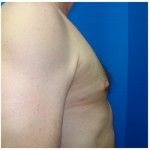 Liposuction Before & After Patient #297
