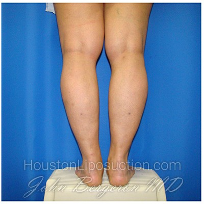 Liposuction Before & After Patient #306