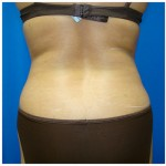 Liposuction Before & After Patient #309