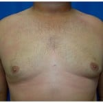 Liposuction Before & After Patient #315