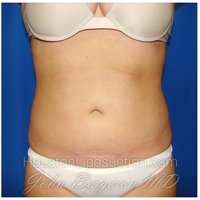 Liposuction Before & After Patient #267