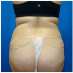 Liposuction Before & After Patient #331
