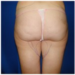 Liposuction Before & After Patient #341