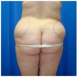Liposuction Before & After Patient #347