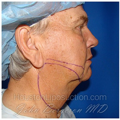 Liposuction Before & After Patient #353