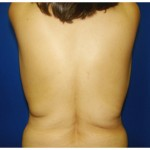 Liposuction Before & After Patient #356