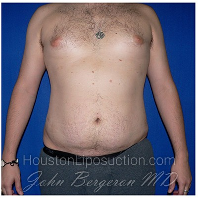 Liposuction Before & After Patient #272