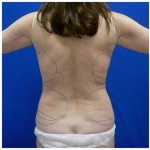 Liposuction Before & After Patient #275