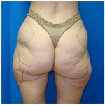 Liposuction Before & After Patient #362