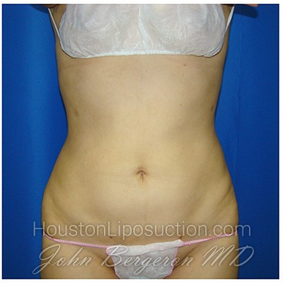 Liposuction Before & After Patient #375
