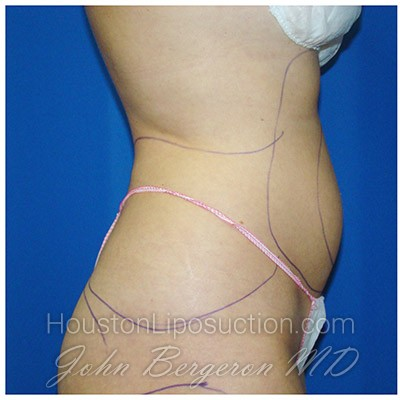 Liposuction Before & After Patient #380