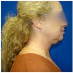 Liposuction Before & After Patient #278