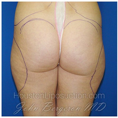 Liposuction Before & After Patient #385