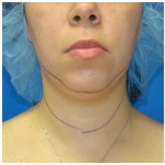 Liposuction Before & After Patient #388