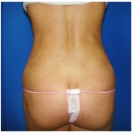 Liposuction Before & After Patient #396