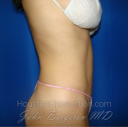 Liposuction Before & After Patient #403