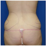 Liposuction Before & After Patient #408