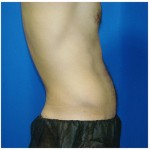 Liposuction Before & After Patient #413