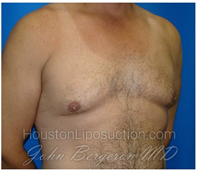 Liposuction Before & After Patient #424