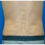 Liposuction Before & After Patient #281