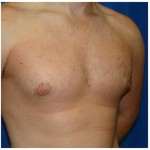 Liposuction Before & After Patient #432