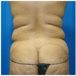 Liposuction Before & After Patient #435
