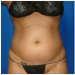 Liposuction Before & After Patient #441