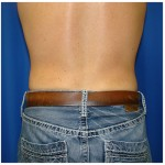 Liposuction Before & After Patient #444