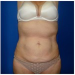 Liposuction Before & After Patient #284