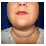 Liposuction Before & After Patient #287