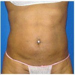 Liposuction Before & After Patient #763