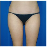 Liposuction Before & After Patient #769