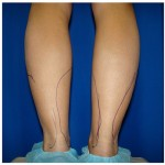 Liposuction Before & After Patient #772