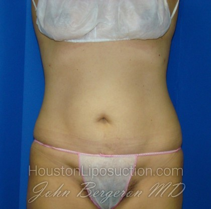 Liposuction Before & After Patient #766