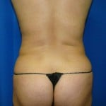 Liposuction Before & After Patient #843