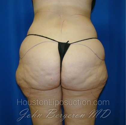Liposuction Before & After Patient #861