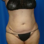 Liposuction Before & After Patient #864