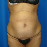 Liposuction Before & After Patient #871