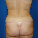 Liposuction Before & After Patient #884