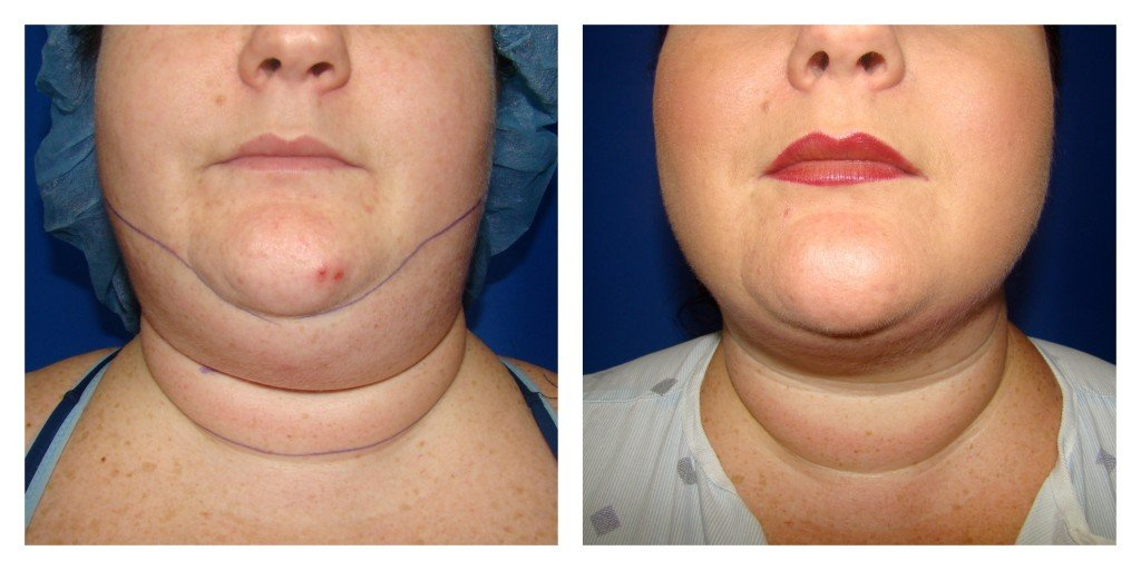 Houston Chin Liposuction Patient
