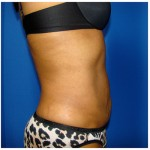 Liposuction Before & After Patient #936