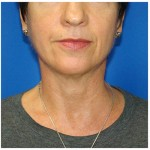 Liposuction Before & After Patient #941