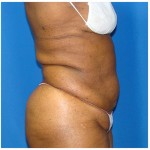 Liposuction Before & After Patient #946