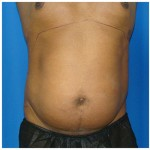 Liposuction Before & After Patient #962